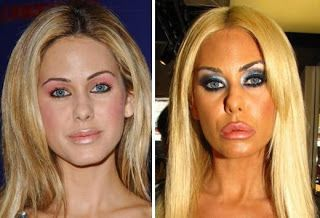 Chatter Busy: Shauna Sand Plastic Surgery