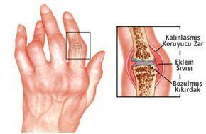 İltihaplı eklem romatizması ve sinir sıkışması için Prof. Dr. İbrahim Saraçoğlu hocamızın önermiş olduğu kiraz sapı ve ısırgan otu kürü ile şikayetlerinizden doğal bitkisel tedavi yöntemi ile kurtulabilirsiniz. İltihaplı eklem romatizması (romatoid artrit) hastalığı kişilerde ellerde ve ayaklarda ağrı belirtileriyle başlayan bir hastalıktır. Bir müddet sonra kişinin yaşam kalitesini düşürmekte, sosyal yaşantısına engel olmaya başlar. …