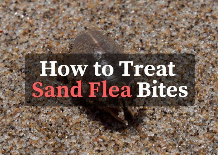 4fabb1f402e55533f6e64849ebee616f - How To Get Rid Of Sand Flea Bites Fast