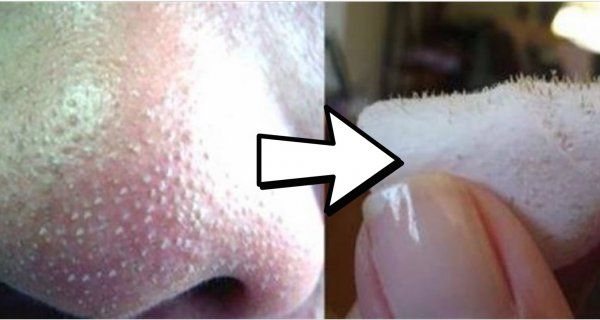 Simple Trick to Remove Nasty Blackheads In An Instant