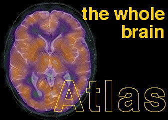 The Whole Brain Atlas by Keith A Johnson M.D. and J. Alex Becker, Phd. Neuroimaging. Great site-Normal Brain, Cerebrovascular Disease, Neoplastic Disease, Degenerative Disease, and Inflammatory or Infectious Disease. Pinned by SOS Inc. Resources @sostherapy http://pinterest.com/sostherapy.