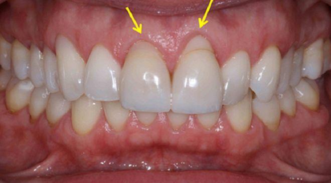 6 natürliche Wege zurückgehendes Zahnfleisch zu heilen