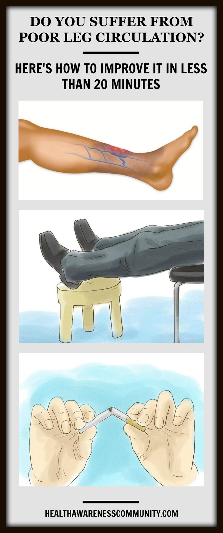 7 ways to help you improve your leg circulation. Learn more!