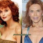Tina Louise Plastic Surgery.