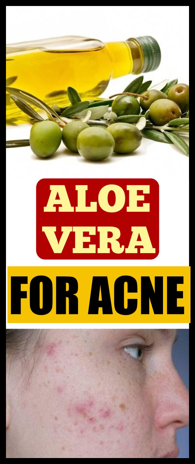 Do this spot treatment with aloe vera to get rid of acne in just 1 night