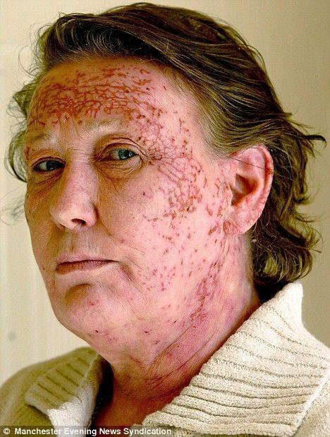 34 Best Severe Allergic Reaction Images On Pinterest