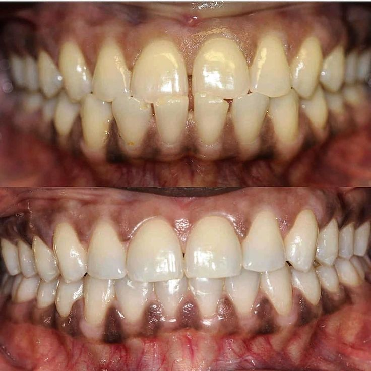 Case from @myntdental - Mynt dental case of the day  Patient presented with class III occlusion anterior crossbite spacing chipped and stained teeth. We are so happy with her new smile! . . . . . .  #retainers #orthodontics #invisalign #porcelain #veneer #composite #bonding #whitening #alldentfor#dentalstudent #teeth #dental #odontologia #dentistry #braces #dentalschool #dentalassistant #dentalhygienist #dentalhygieneschool #teethwhitening #cosmeticdentistry #cosmeticsurgery #toothfairy…