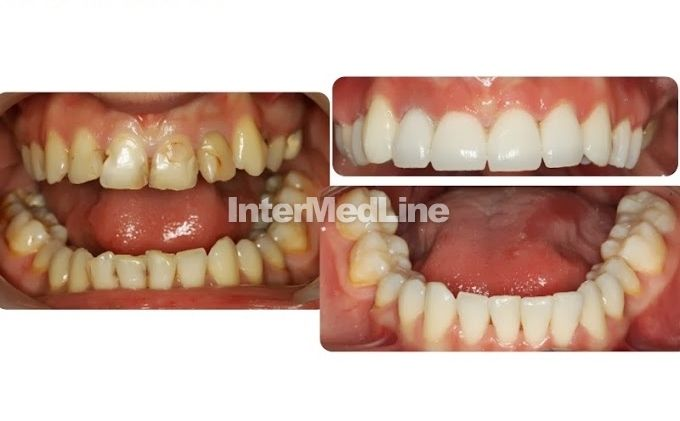 Affordable dental treatment Romania.Dentists , teeth and dental works. on Your Medical Tourism ,Facilitator Abroad - The Best Medical Tourism Solutions For You! http://www.intermedline.com/dental-clinics-romania/   http://www.intermedline.com/wp-content/blogs.dir/1/files/dental-treatment-abroad-dental-clinical-cases-romania/800x600_1387035669_dental_clinical_cases_11.jpg #dental #dentaltreatment #dentists #dental tourism #medicaltourism