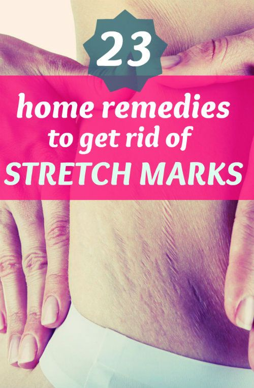 Try out these incredible home remedies to get rid of stretch marks. #stretchmarks #homeremedies #beauty