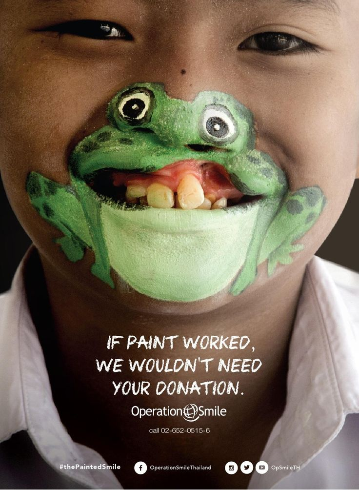 Operation Smile - If paint worked, we wouldn't need your donation. Advertising Agency: BBDO and Proximity Thailand Art Directors: Pakorn Inthachai, Suthisak Sucharittanonta, Tiabtawan Limjittrakorn