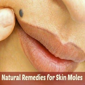 Natural Remedies for Skin Moles Removal