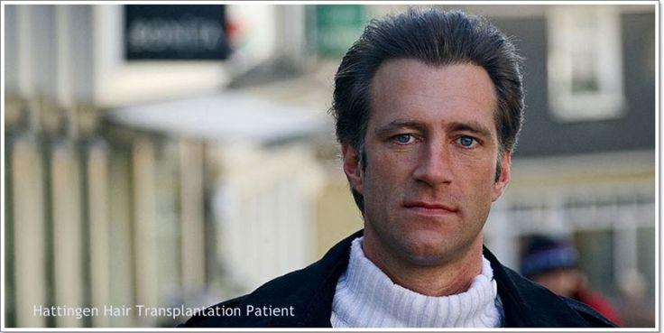 Surgical Hair Restoration With Progressive Levels Of Hair Loss | Hattingen Hair Transplantation