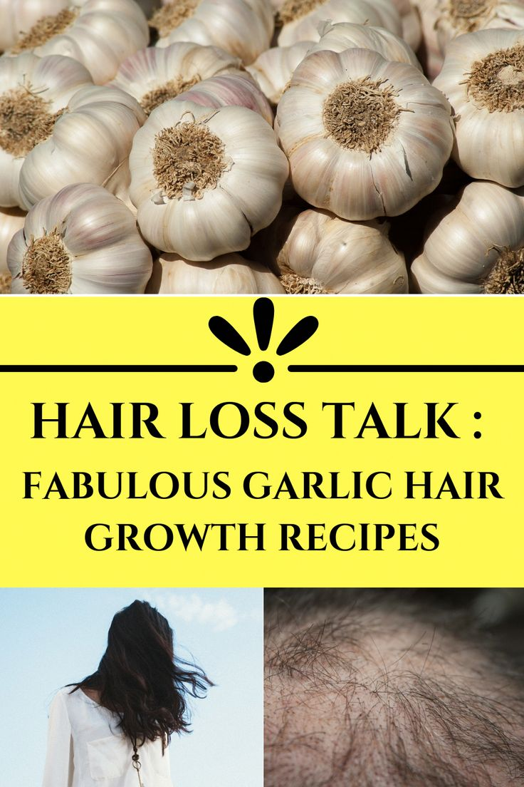 KeepsHairLossTreatment in 2020 Hair growth foods