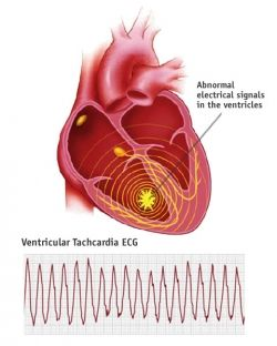 I have this. Can't wait for my procedures to help slow my heart rate down. These doctors in Morganton drive me nuts!