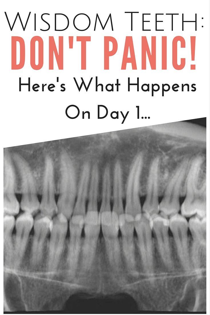 Wisdom Teeth: Don't Panic! Here's What Happens On Day 1 | www.thegingermarieblog.com