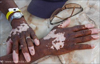 Skin Pigmentation Disorders: Vitiligo