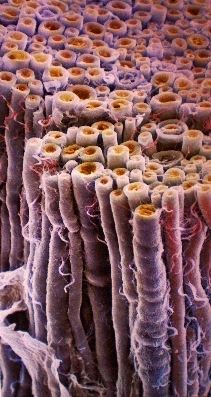 A cross section of a bundle of nerve fibers. Axons (orange) are wrapped in myelin (purple); an extension of the membrane of glial cells. Colored SEM.