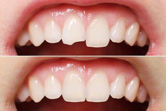 Best dental clinic in mohali: DENTAL BONDING