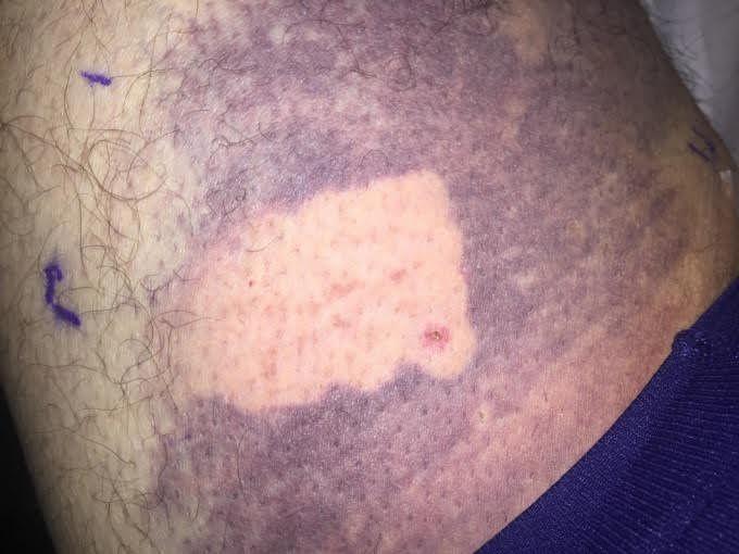 Eliminar un hematoma en un día ya es posible gracias a los dermatólogos de la Clínica Bioláser - Diario de Emprendedores