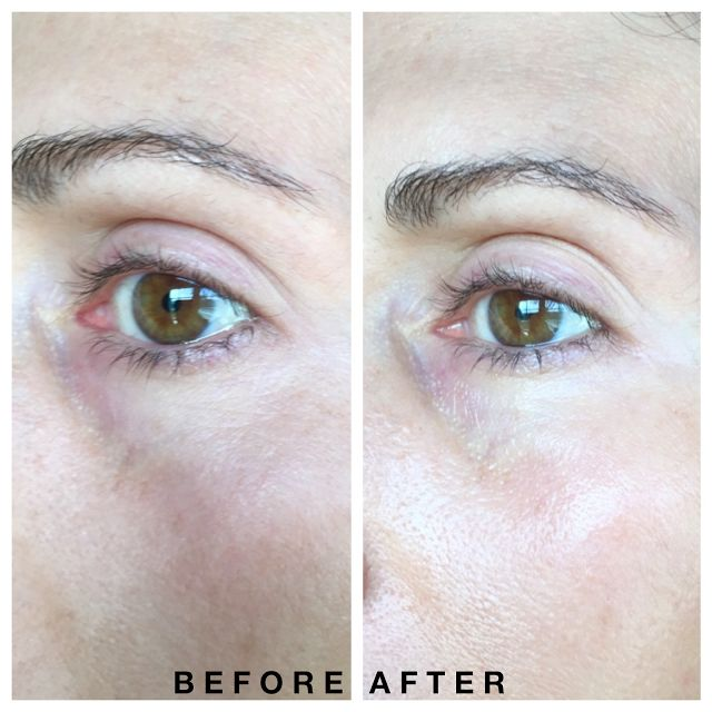 Shiseido Shiseido Benefiance Eye Cream Review