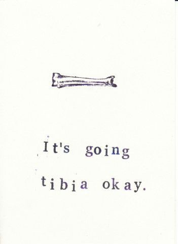 The perfect get well soon card to let anatomy fans, nurses and medical humor lovers know that it's going tibia okay., $2.00   See more about nursing schools, hospital humor and humor.
