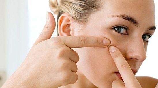 Aceite de árbol de té contra el acné - Solución para acné adulto (prevenir y eliminar)