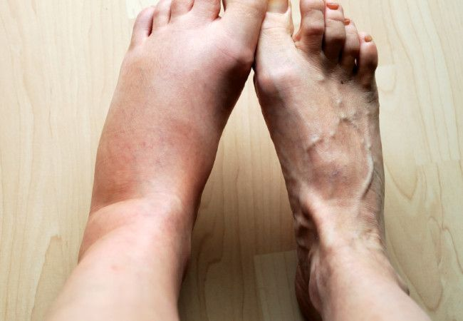 Lymphedema: What You Should Know About Your Risk, Treatment Options