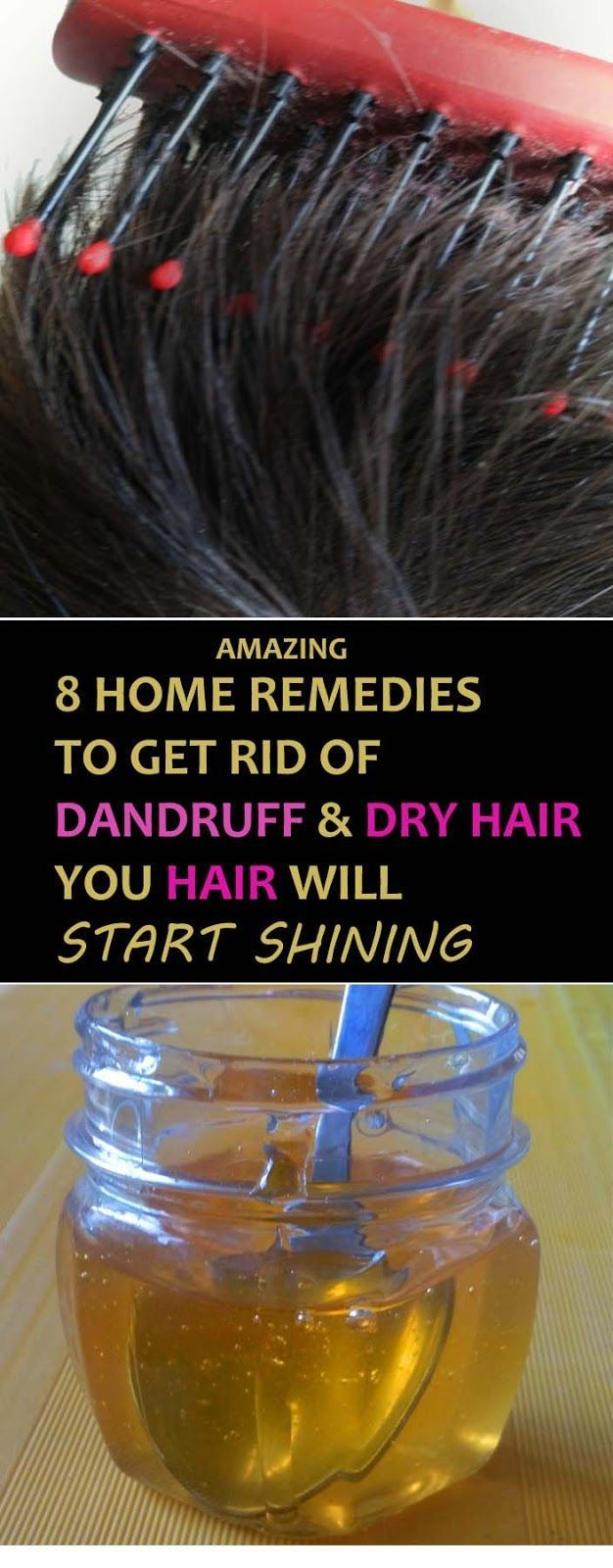8 Best Home Remedies For Dandruff And Itching Scalp #HomeRemediesforDandruff