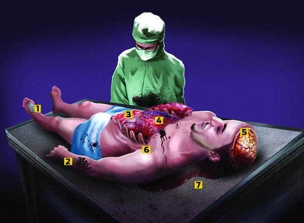 Como é feita uma autópsia?