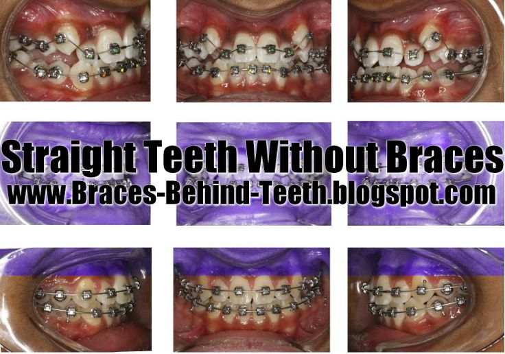 Straight Teeth Without Braces http://braces-behind-teeth.blogspot.com/2014/06/straight-teeth-without-braces.html