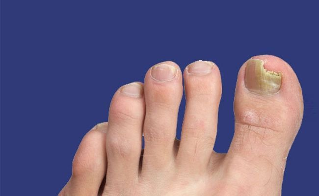 Fungal infection of the nail is a bothersome problem. There are various causes o