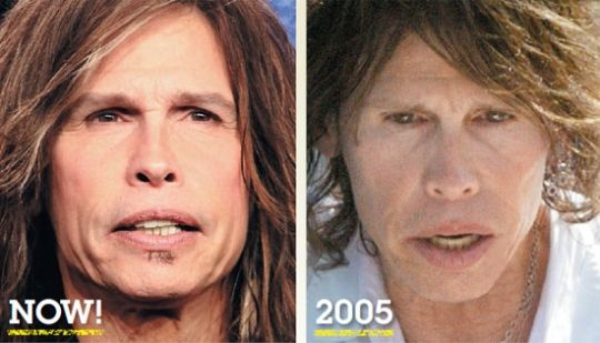 Steven Tyler Plastic Surgery Celebrity Face Lift Before