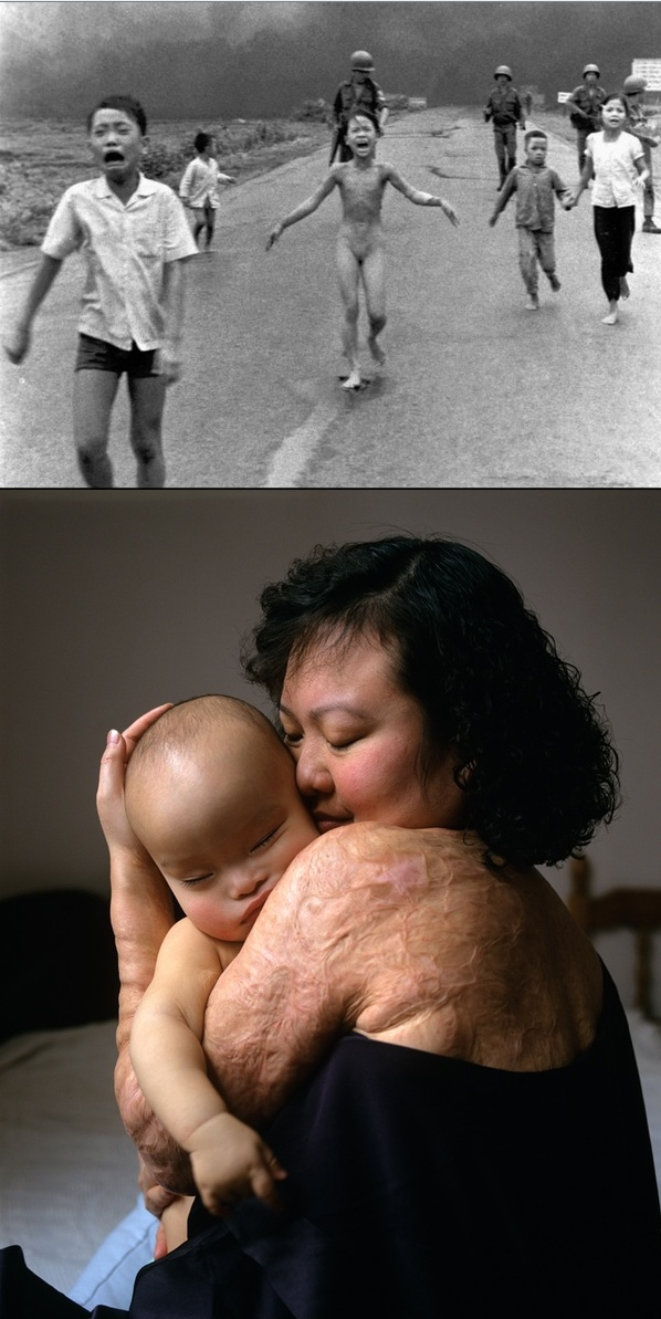 Kim Phuc was pictured in a world-famous and photograph from the Vietnam war, running naked from an airborne attack, horribly burned with napalm, in June of 1972. She now runs The Kim Foundation International, and she acts as a Goodwill Ambassador for UNESCO.