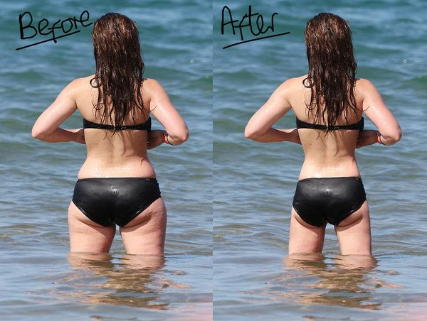Weight Loss Before After Pics