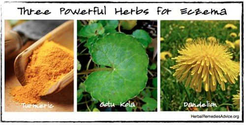 Herbs for eczema.