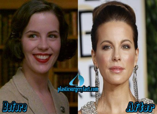Kate Beckinsale Nose Job Before and After | http://plasticsurgeryfact.com/kate-beckinsale-plastic-surgery-before-and-after/