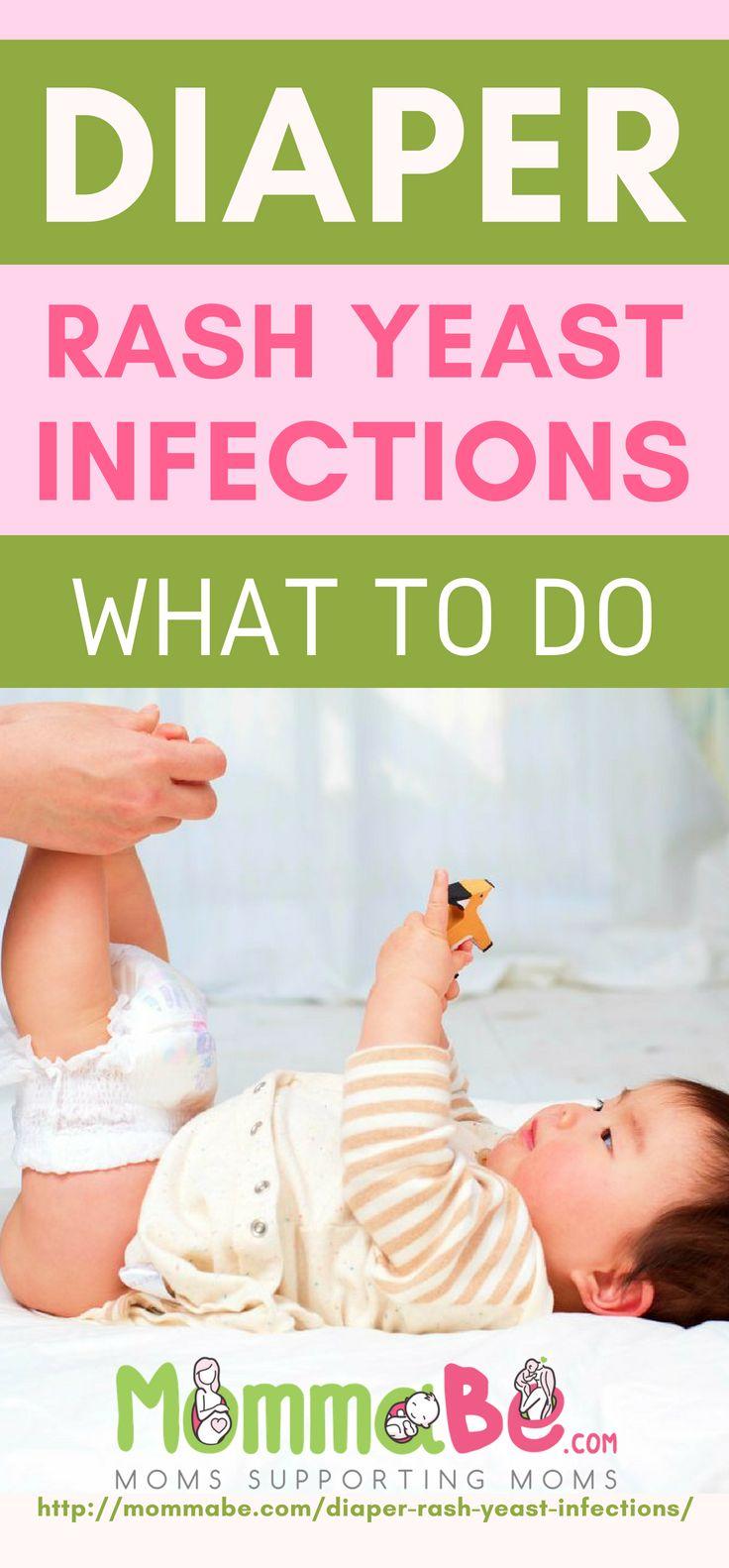 Diaper Rash Yeast Infections   Yeast rash baby, Yeast ...