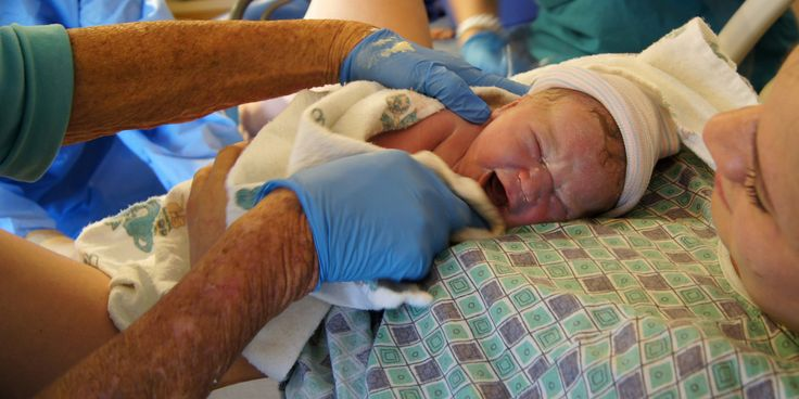 OB-GYN Group Issues Major New Cord Clamping Recommendation