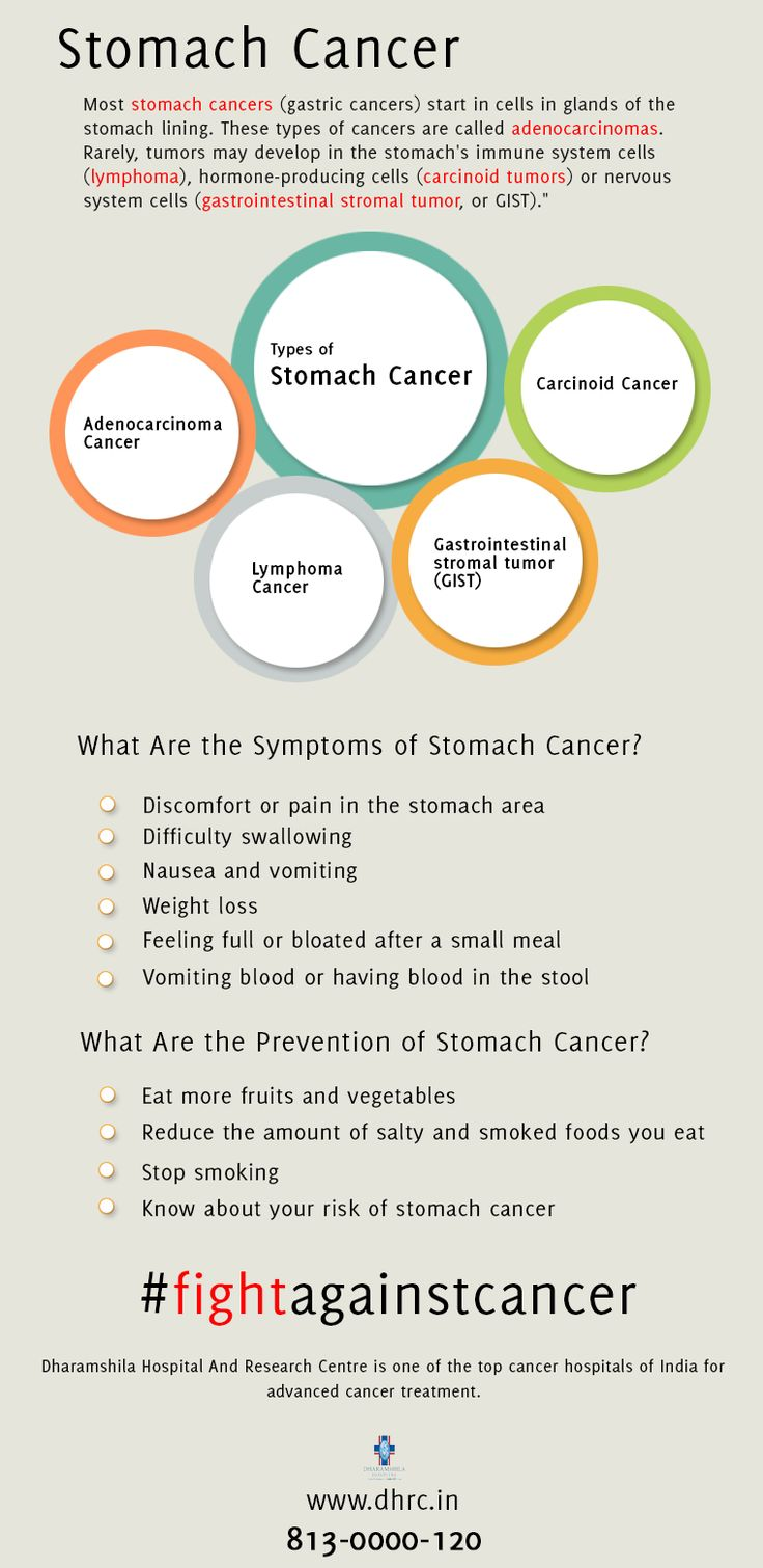 """Most #stomach cancers (gastric cancers) start in cells in glands of the stomach lining. These types of #cancers are called #adenocarcinomas. Rarely, tumors may develop in the stomach's immune system cells (#lymphoma), #hormone-producing cells (carcinoid tumors) or nervous system cells (gastrointestinal stromal tumor, or GIST).""  http://dhrc.in/stomach-cancer-treatment-hospital-india.html"