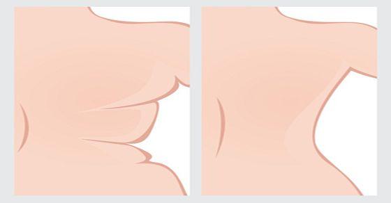 ¿Detesta la idea de ponerse un bikini o una camiseta ajustada debido a la protuberancia que aparece en la espalda?   El Michelin, la grasa q...