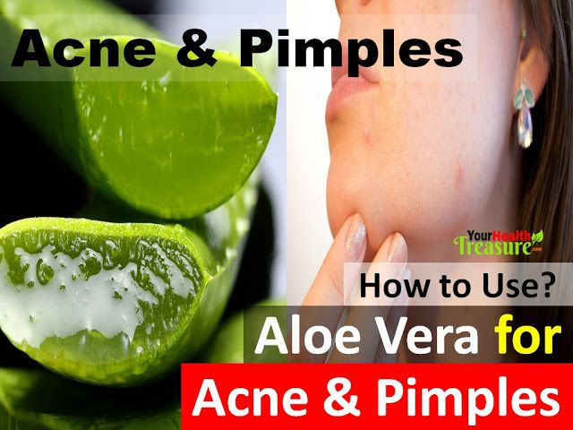 how to use aloe vera on face for pimples