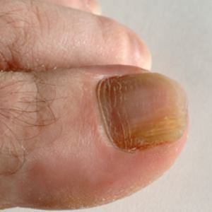 fungal toenail infection ~ please look away from the pic.
