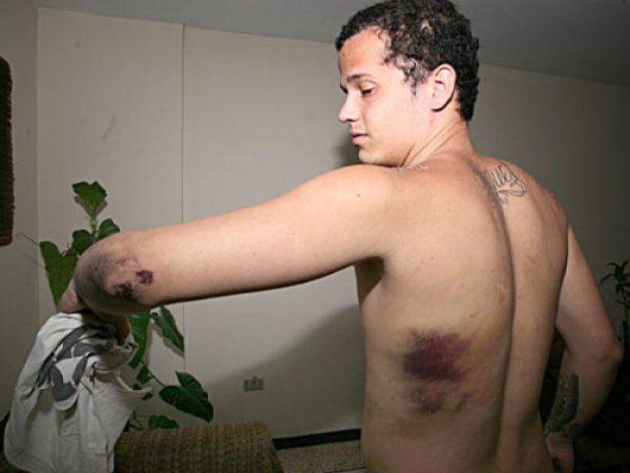 Venezuela, studente denuncia di essere stato violentato con un fucile