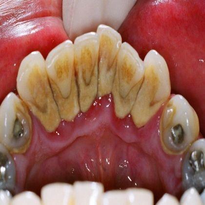 Peroxyde d'hydrogène Il agit comme un agent de blanchiment des dents naturelles…