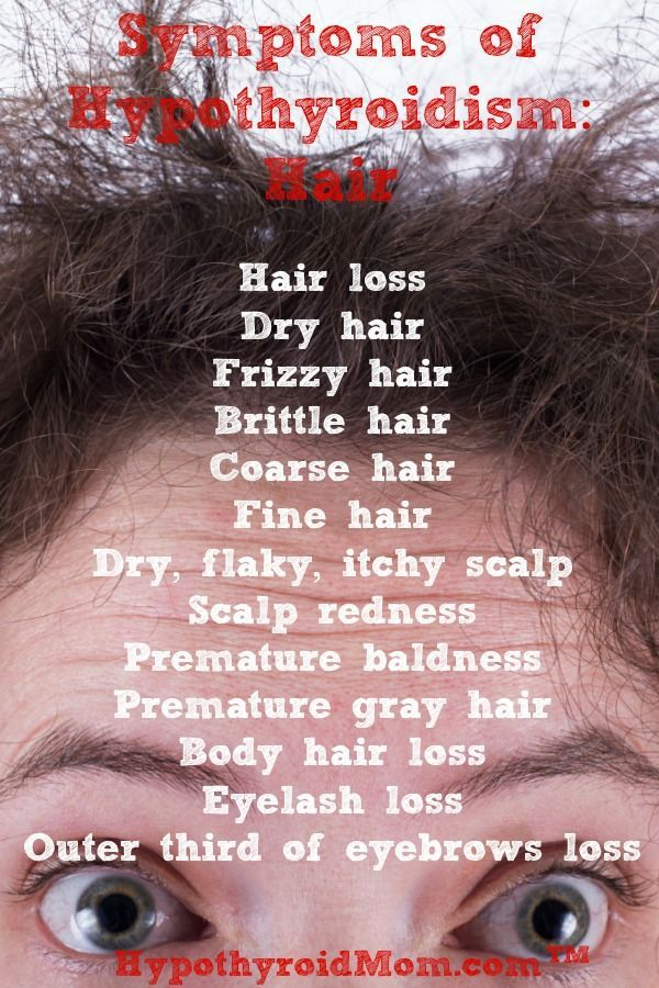 10 Things That Stopped My Thyroid Hair Loss Hypothyroidism