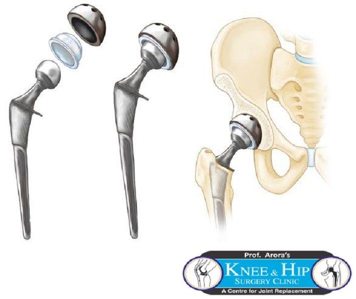 Knee Replacement Surgeon Delhi Hip Replacement Knee Replacement Surgeon