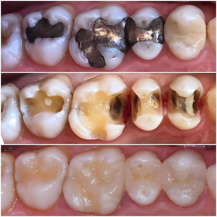Replacing old amalgam fillings with white composite