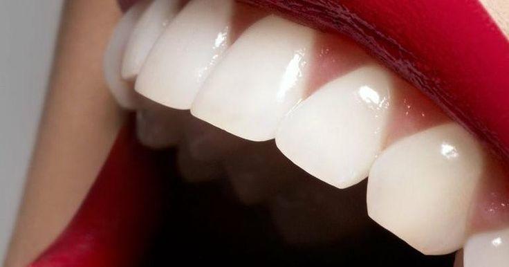 Te damos un truco muy sencillo para conseguir una dentadura más blanca.