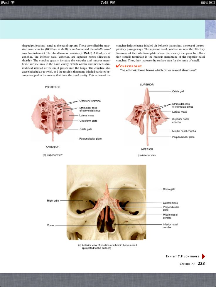 48 best Chapter 7, The Skeletal System: The Axial Skeleton images on ...