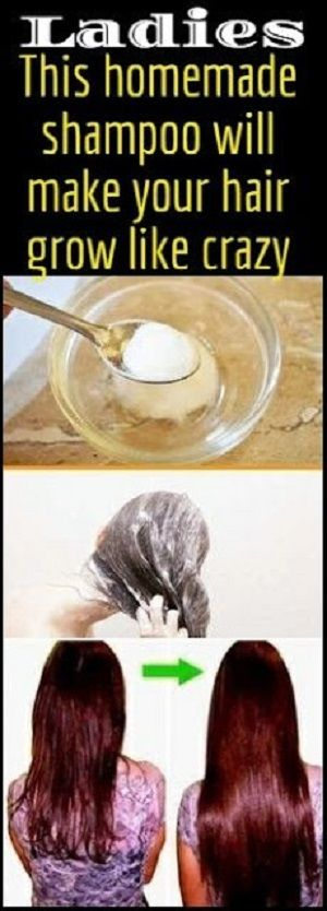 This DIY hair growth shampoo is 100% natural, super easy to make, and you most likely already have the ingredients in your pantry.